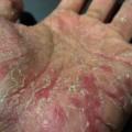 Как лечить псориаз