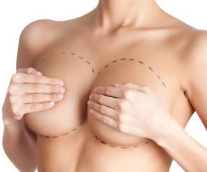 Виды грудных имплантов